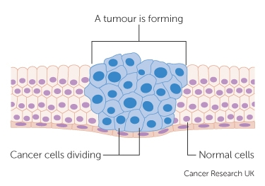 Image 1 - Tumour Formation